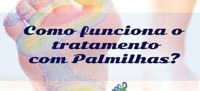 Como Funciona o tratamento com Palmilhas?
